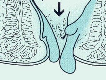 Emorroidi e stipsi